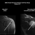 Stem Cells for Partial Thickness Rotator Cuff Tears